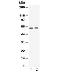 Anti-LOXL1