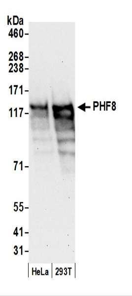 Anti-PHF8