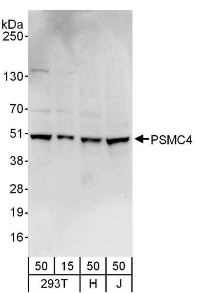 Anti-PSMC4
