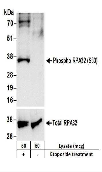 Anti-phospho-RPA32 (Ser33)