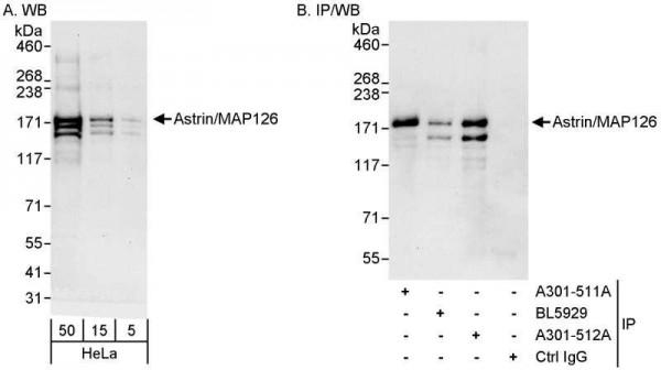 Anti-Astrin/MAP126