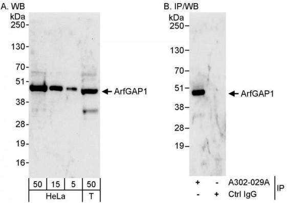 Anti-ArfGAP1