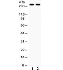 Anti-NMDAR2B / GRIN2B