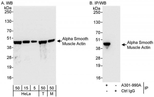 Anti-Alpha Smooth Muscle Actin
