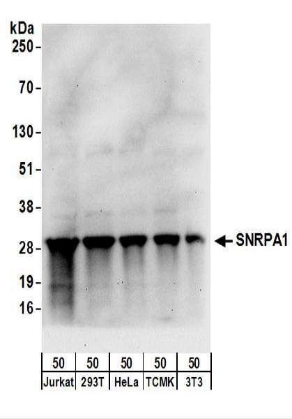 Anti-SNRPA1