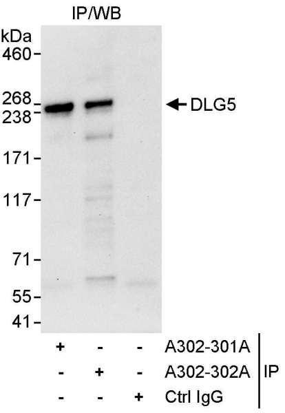 Anti-DLG5