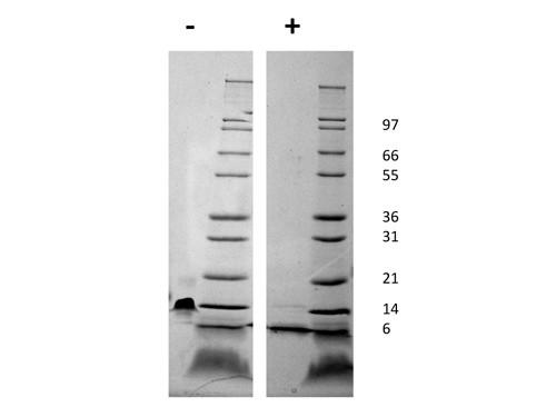 Stromal Cell-Derived Factor-1 alpha (CXCL12)