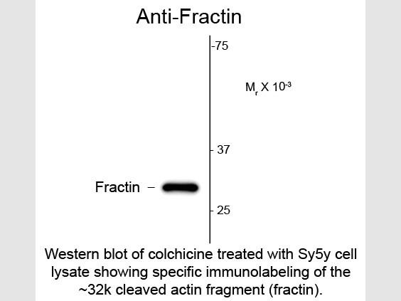 Anti-Fractin