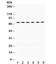 Anti-LIM Kinase 2 / LIMK2