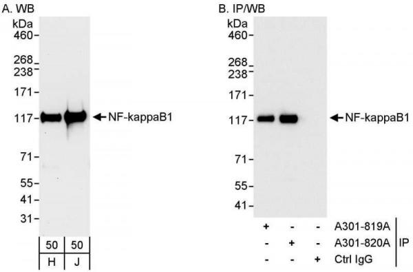 Anti-NF-kappaB1