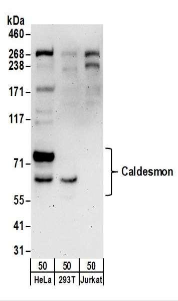 Anti-Caldesmon