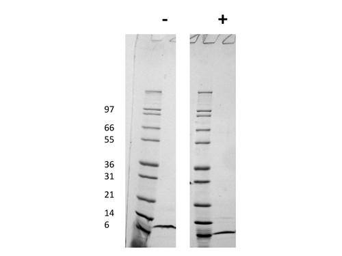 Macrophage Inflammatory Protein-4 (CCL18)