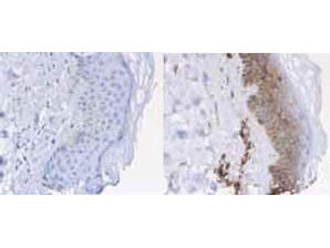 Anti-beta2-Microglobulin (human urine), Horseradish Peroxidase conjugated