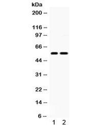 Anti-5HT2B Receptor