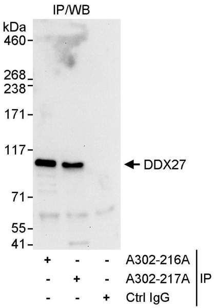Anti-DDX27