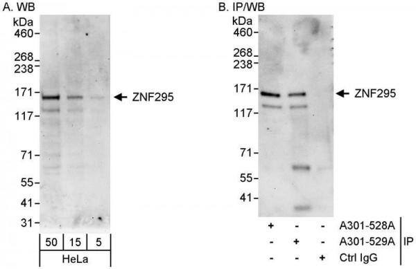 Anti-ZNF295