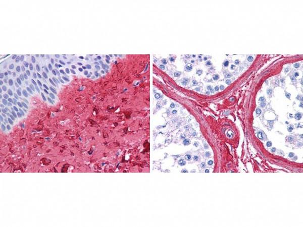 Anti-Collagen Type III, Biotin conjugated