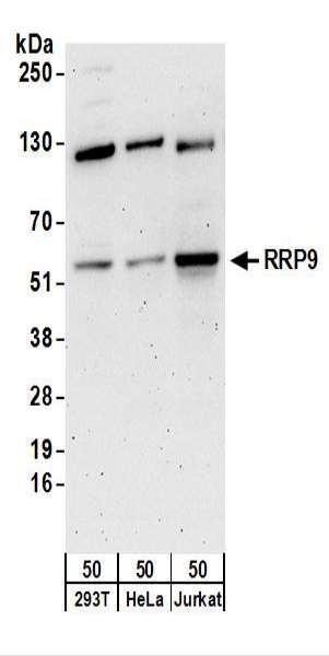 Anti-RRP9