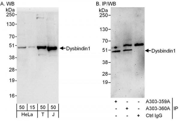 Anti-Dysbindin1