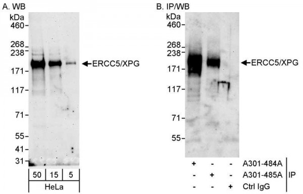 Anti-ERCC5/XPG