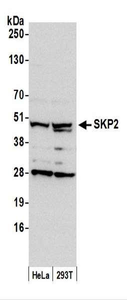 Anti-SKP2