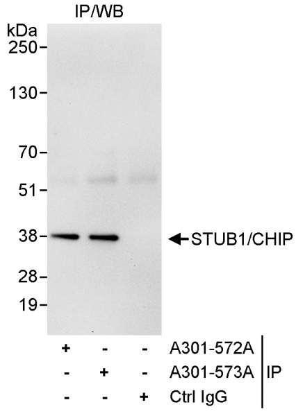 Anti-STUB1/CHIP