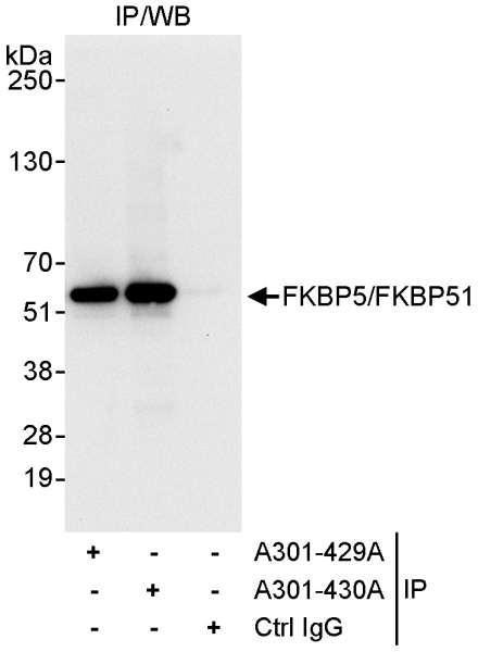 Anti-FKBP5/FKBP51