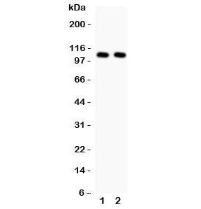 Anti-NFKB1