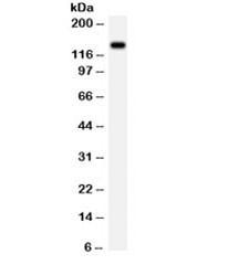 Anti-NMDAR2C / GRIN2C