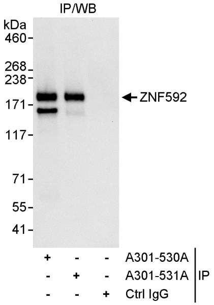 Anti-ZNF592