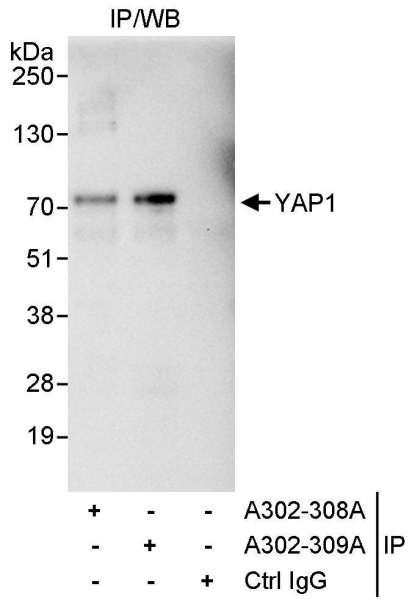 Anti-YAP1