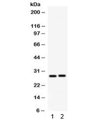 Anti-IGFBP1
