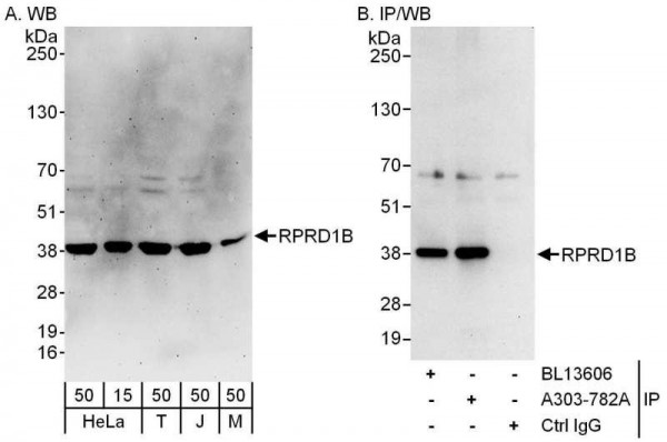Anti-RPRD1B