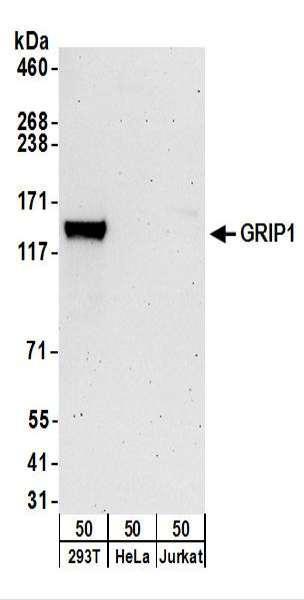 Anti-GRIP1