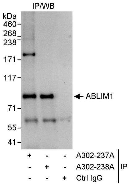 Anti-ABLIM1