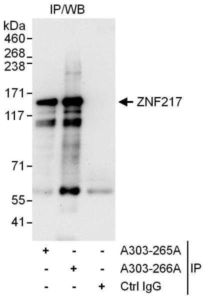 Anti-ZNF217
