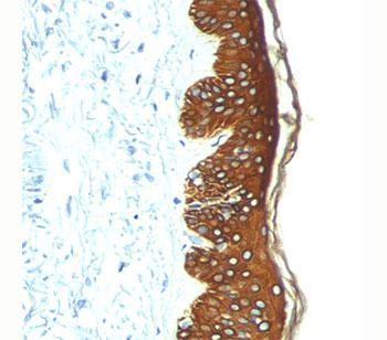 Anti-Basic Cytokeratin, clone AE3