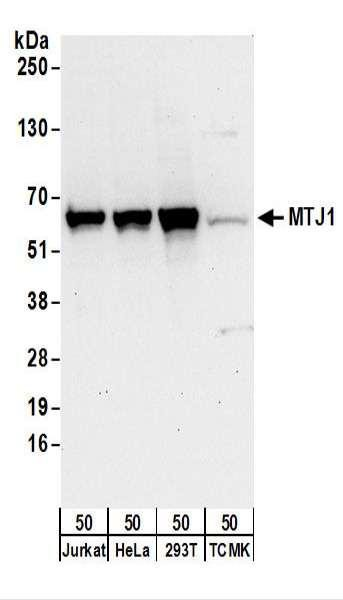 Anti-MTJ1