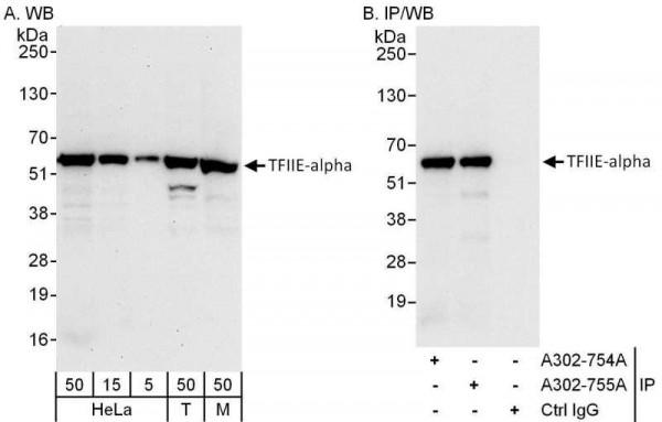Anti-GTF2E1/TFIIE-alpha