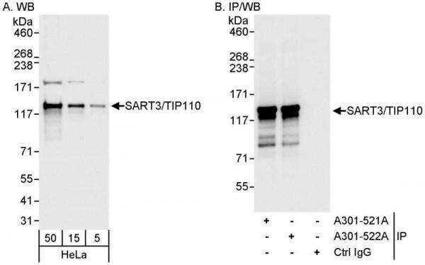 Anti-SART3/TIP110