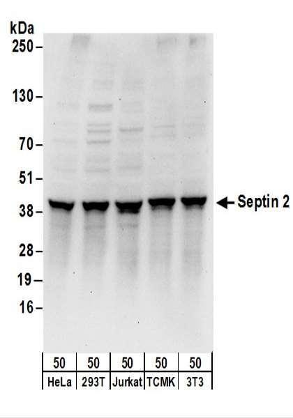 Anti-Septin 2