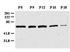 Anti-Zic-1 (Zinc finger protein)
