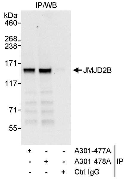 Anti-JMJD2B