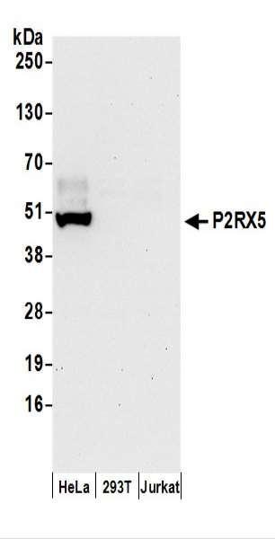 Anti-P2RX5
