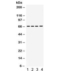 Anti-STXBP2 / UNC18-2