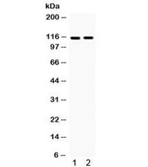 Anti-Eph Receptor A5 / EphA5