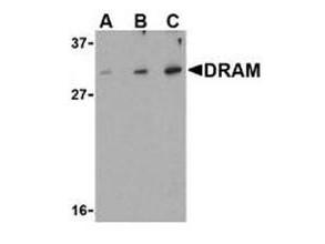 Anti-DRAM (Damage Related Autophagy Modulator)