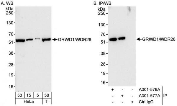 Anti-GRWD1/WDR28