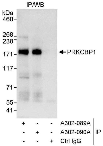 Anti-PRKCBP1