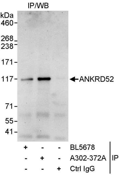 Anti-ANKRD52